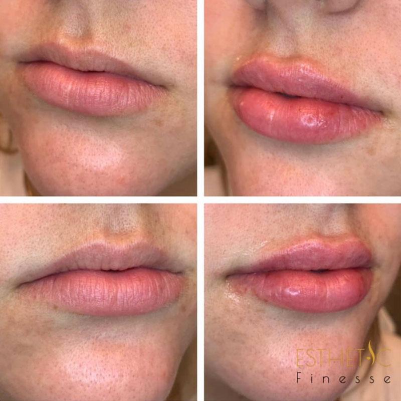 lip injections arizona