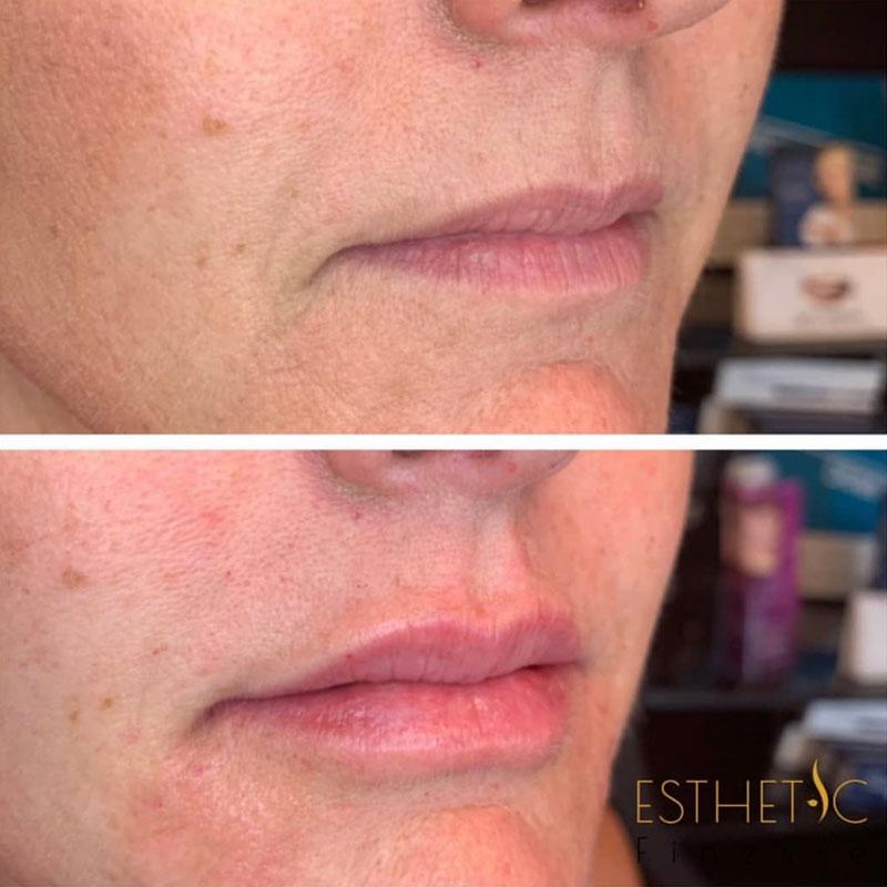 lip augmentation in Phoenix